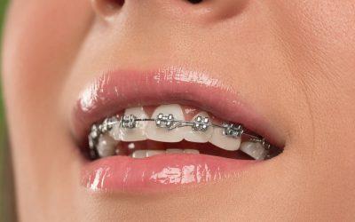 Combien coûte un appareil dentaire en Suisse ?